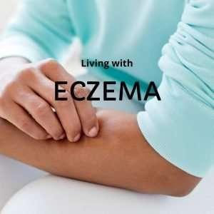 """Woman in aqua blue jumper scratching arm with text overlay """"living with eczema"""""""